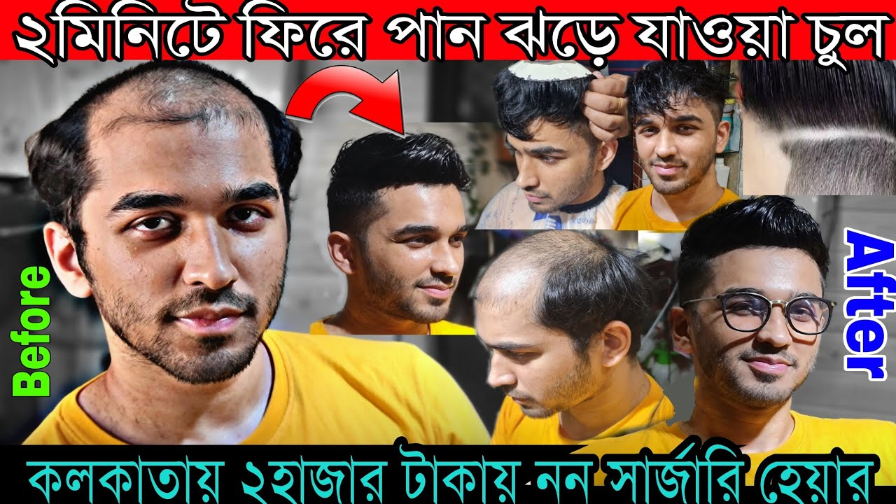 কলকাতায় ১মিনিটে ঝড়ে যাওয়া চুল ফিরে পান | ২৫০০টাকায় চুল পড়া সমাধান করুন (Hair Transplant Kolkata)