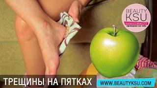 Гладкие пятки яблоком(, 2015-09-11T14:01:13.000Z)