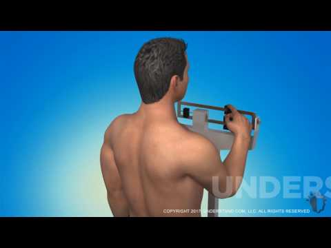 Understand.com | New Gynecomastia Surgery Animation