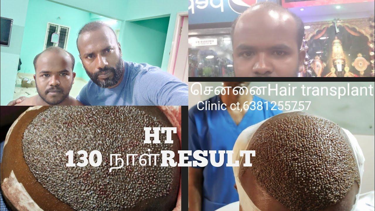 Hair transplant 130 நாள் RESULT வீடியோவை முழுசா பாத்துட்டு கமெண்ட் பண்ணுங்க