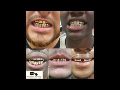 Custom Gold Gillz Review's + Pictures @Benzino_Jewelry  (1080p)