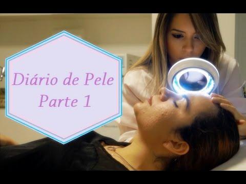 Tratamento de Acne e Manchas - 1# Diário de Pele - Consulta Dermatológica