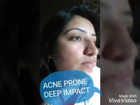 Wow ( Acne Deep Impact ) clear skin easily