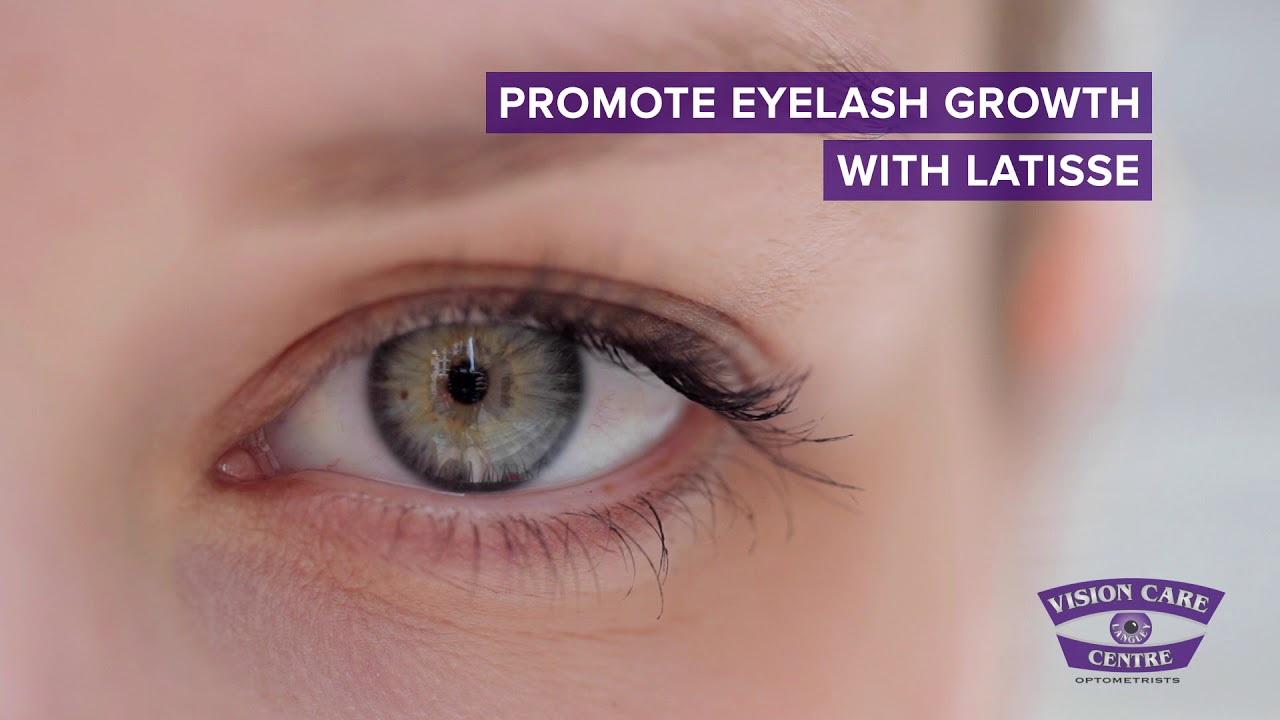 Latisse Eye Lash Treatment In Langley Youtube