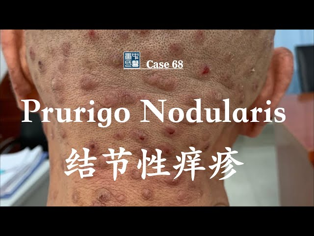 A 64-year-old man with 15-year history of Prurigo Nodularis 64岁罹患结节性痒疹15年