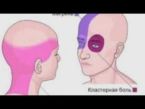 Как избавиться от кластерной головной боли