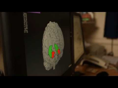 Inside the brain of someone suffering with depression