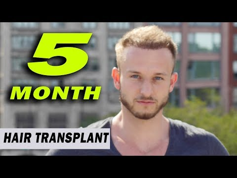 FUE Hair Transplant 5 Month (post op) Istanbul, Turkey GROWTH STAGE