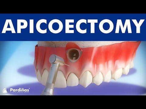 Apicoectomy ©