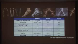 Periférico tratamiento de cierre vascular