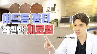 [로담Q&A] 여드름 흉터 확실한 치료법?!