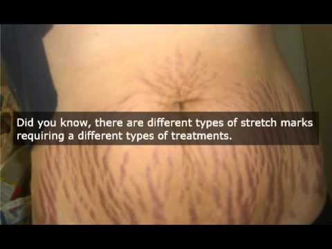 Laser surgery stretch marks quotes fandeluxe Choice Image
