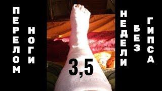 Перелом ноги_3,5 недели после снятия гипса+в конце позитиФФ(, 2015-08-01T16:25:42.000Z)