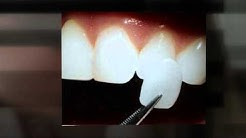 Porcelain Veneers Dentistry Oldsmar FL Call  727.781.6224