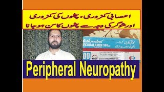Mecobalmin-Tablets Is Used For:-Peripheral-Neuropahties|| Megaloblastic Anemia|Diabetic Neuropathies