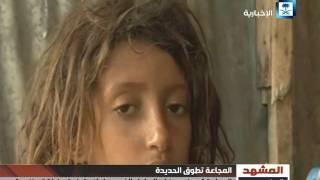 تقرير المشهد اليمني - شبح الموت يحاصر تهامة اليمن