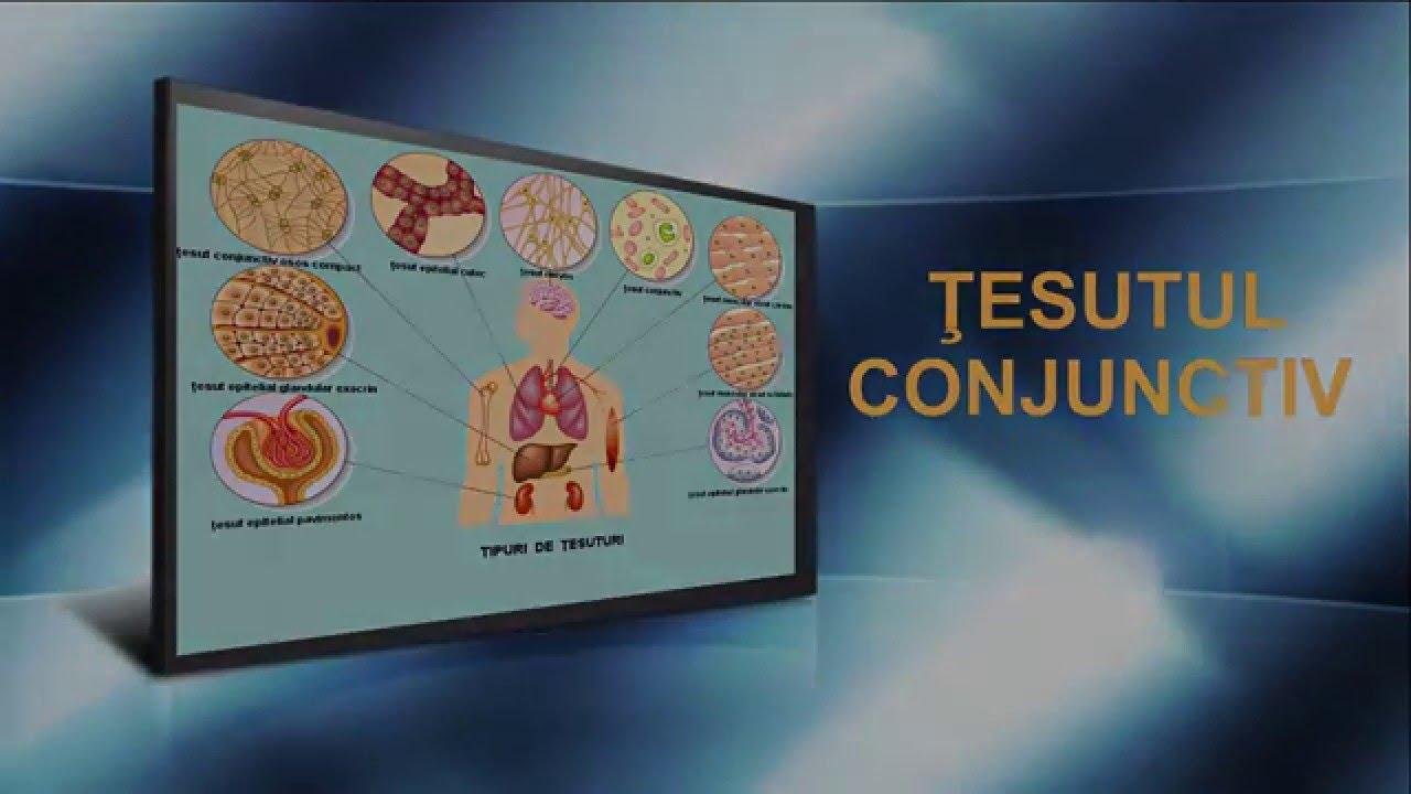 Care sunt semnele si simptomele unei boli de țesut conjunctiv?
