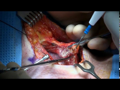 Thyroidectomy using HARMONIC FOCUS®+ Shears with Dr. Pellitteri
