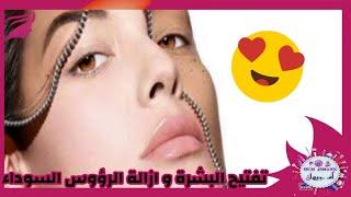 ازالة الرؤوس السوداء و تفتيح الوجه باكمله  عن طريق مكونات بسيطة فعالة مضمونه مجربة مراراً وتكرارا