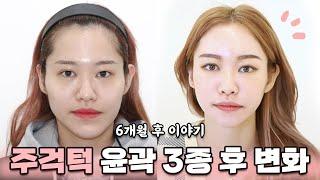 윤곽3종 & 풀페이스 지방이식 내 얼굴 적응하는…