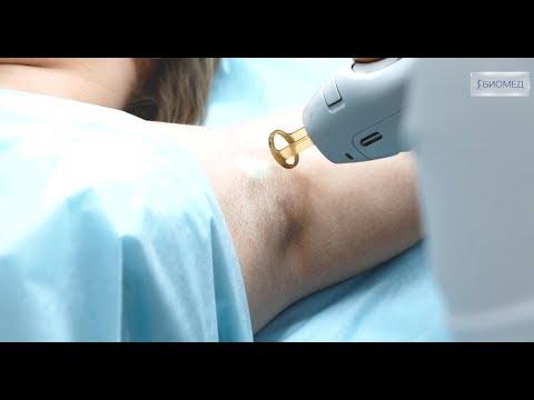 Лазерная эпиляция подмышек на аппарате Candela