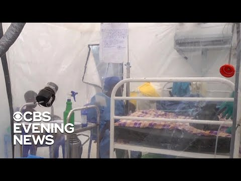 Patients in Congo fear violence amid Ebola outbreak