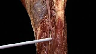 Vasos estallan los la sanguíneos pierna en