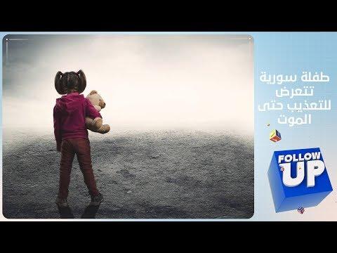 طفلة سورية تتعرض للتعذيب حتى الموت و الفاعل مجهول - follow up  - نشر قبل 3 ساعة