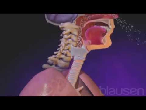 El orgien de las infecciones de las vías respiratorias superiores ...