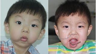 Sleep apnea (Breathing difficulty) in 3 yr old Chinese baby with very small lower jaw..