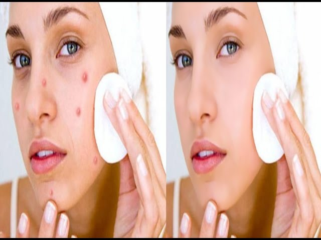 Photoshop Tutorial : How to clean face easy  in Photoshop