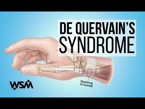 WSM's Musician Minute - De Quervain's Syndrome