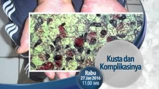 Infeksi penyakit kusta disebabkan oleh kerusakan syaraf besar di daerah wajah maupun anggota tubuh l.