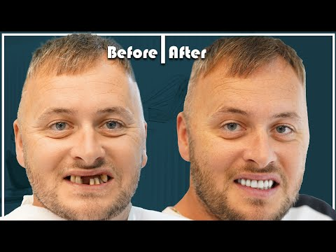 Simon from UK did dental implants in Turkey and got an AMAZING RESULT!