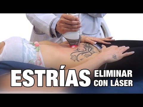 cirugia para estrias precio colombia