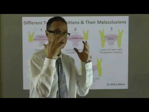 Effect of Tongue Positions on Teeth Alignment, Dental Arch, Lip Shape & Face by Dr Mike Mew