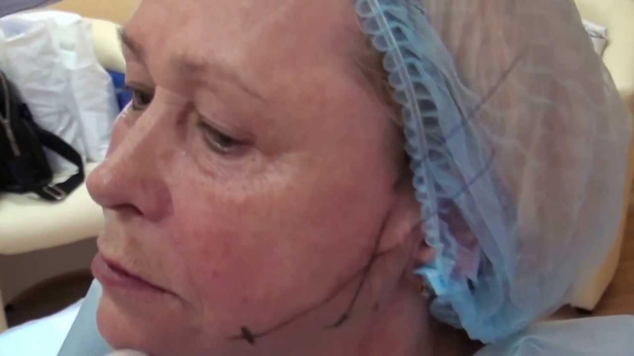 Увеличение губ гиалуроновой кислотой МОЙ ОПЫТ - YouTube
