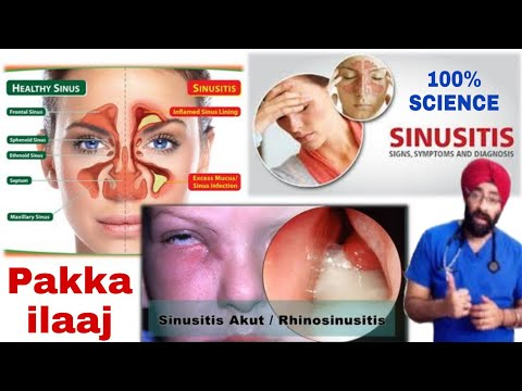 साइनस | Sinusitis : Permanant Cure & Cause | Explained In Hindi By Dr.Education