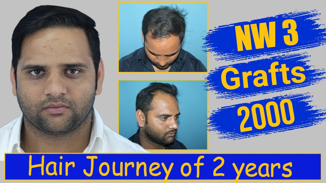 Hair Transplantation: 2000 grafts, Grade 3 @Eugenix Hair Sciences by Drs Sethi & Bansal