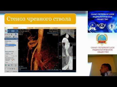 Александров Т.А. Диагностика стеноза чревного ствола у детей