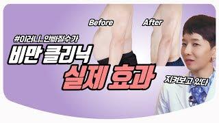 비만 클리닉 다이어트 효과 & 실제 후기 &am…