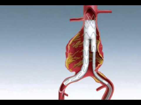 Endovascular Aneurysm Repair (EVAR) in Singapore - Treatment of Aortic Aneurysm