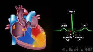 El Sistema de Conducción Cardíaca y la Relación con ECG, Animación. Alila Medical Media Español.