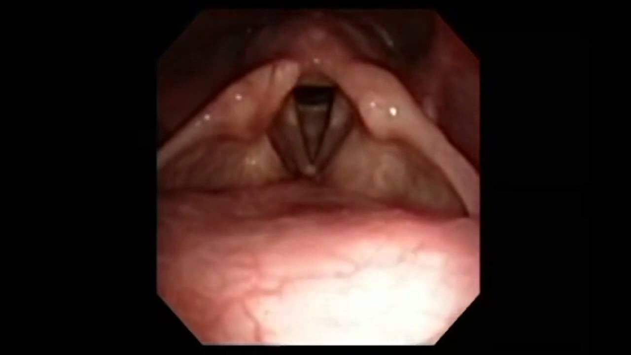 Upper Airway Anatomy via Fiber Optic Endoscope - YouTube