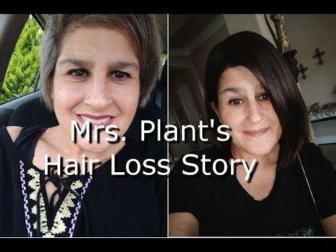 Mrs. Plant's Hair Loss Story [Androgenic Alopecia]