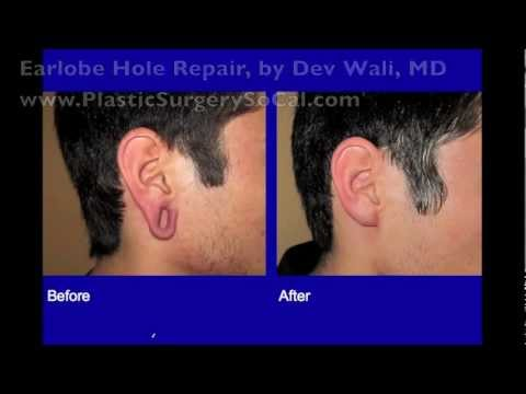 Earlobe Hole Repair For GaugePlug Earlobe Holes YouTube