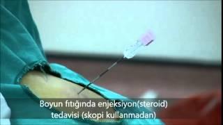 Boyun Fıtığında enjeksiyon(steroid) Tedavisi (spoki kullanmadan)