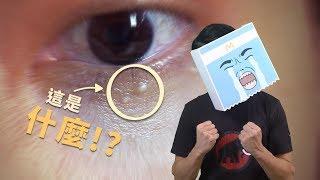眼周一粒一粒是什麼?微距影像揭露你以為的肉芽真相 What are those bumpy things around my lower eyelids? (Eng Sub) thumbnail