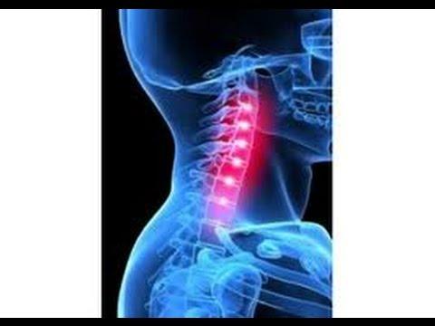 ЙОГИ РЕКОМЕНДУЮТ: Упражнения при шейном остеохондрозе: Лечение головной боли!
