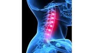 ЙОГИ РЕКОМЕНДУЮТ: Упражнения при шейном остеохондрозе: Лечение головной боли!(Йога поможет избавиться от такой проблемы, как головная боль, когда диагноз - остеохондроз шейного отдела..., 2014-12-04T17:40:49.000Z)